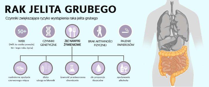 Znalezione obrazy dla zapytania rak jelita grubego